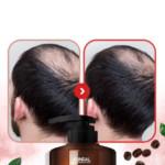 Kundal-Shampoo-Anti-Caida-2-1.jpg